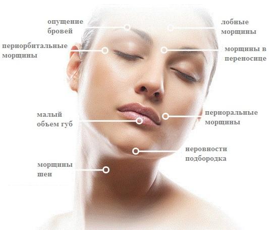 Ботулакс (Botulax): отзывы косметологов, цена, инструкция по применению
