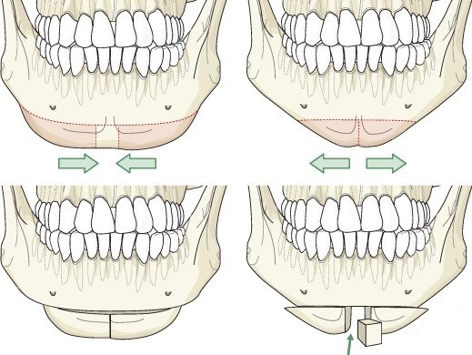 Контурная пластика лица от второго подбородка. Фото до и после операции, цена, отзывы