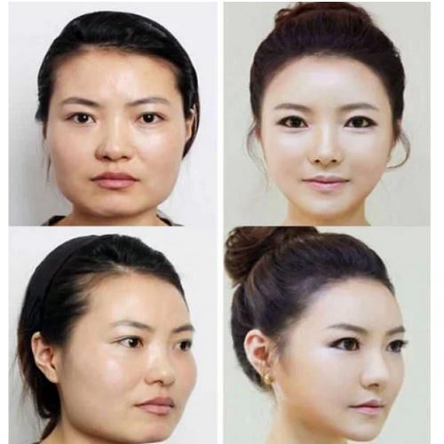 Красивые девушки 16-17-18 лет до и после пластики. Фото