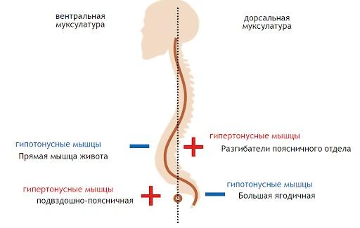 Подвздошно-поясничная мышца. Упражнения для укрепления, растяжка, как накачать