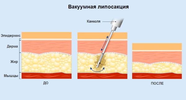 Липосакция бёдер, толстых ног у женщин. Фото до и после, цена, отзывы