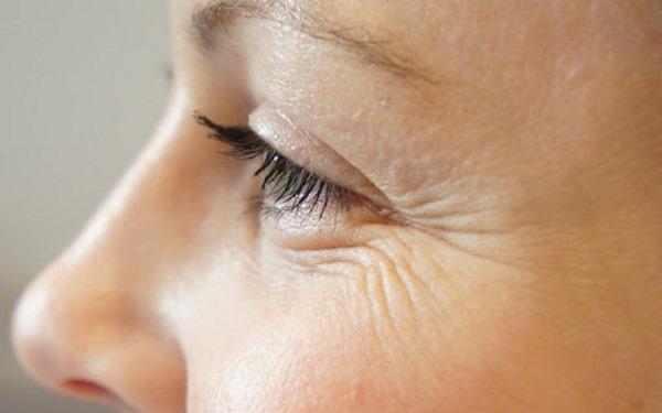 Мезо айс (Мезоай, Mesoeye С71) для глаз. Фото до и после, отзывы, цена