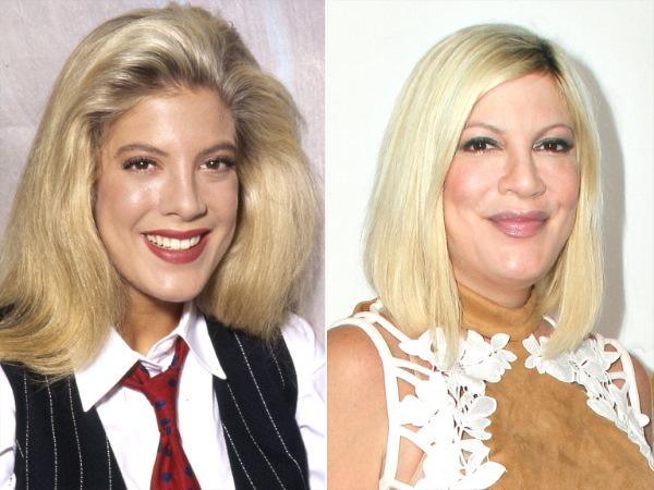 Тори Спеллинг. Фото в молодости, сейчас, до и после пластики, без макияжа, в купальнике