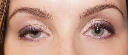 Ботокс под глаза. Фото до и после, эффекты, отзывы, последствия