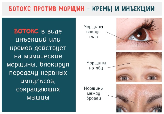 Аналоги ботокса для лица российского производства, Франция, Корея. Ксеомин, Диспорт, Релатокс