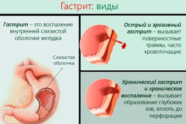 Никотинка (никотиновая кислота) в уколах. Инструкция, показания к применению, курс лечения