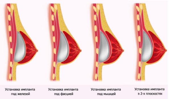 Тубулярная форма молочных желез, груди. Фото, коррекция без операции у женщин, мужчин