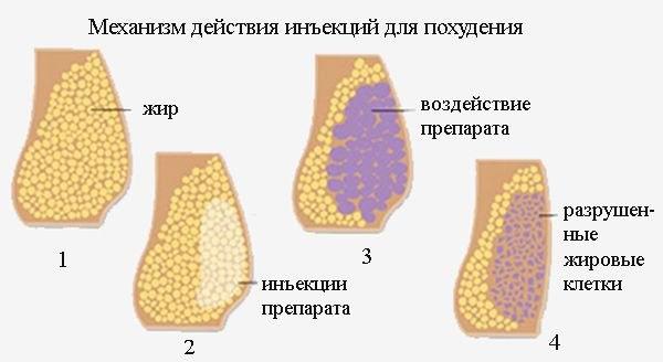 Уменьшение носа липолитиками. Фото до и после, цена, отзывы, последствия