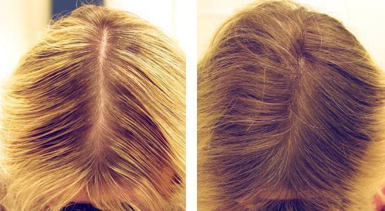 Лосьон-тоник Эсвицин экспортный для волос. Отзывы