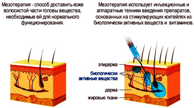 Как избавиться от морщин под глазами. Косметология