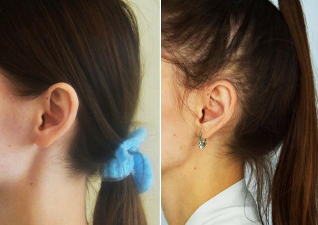 Операция на уши от лопоухости. Как называется, цена