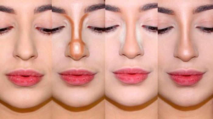 Широкий нос у девушек. Что делать, как избавиться, ринопластика