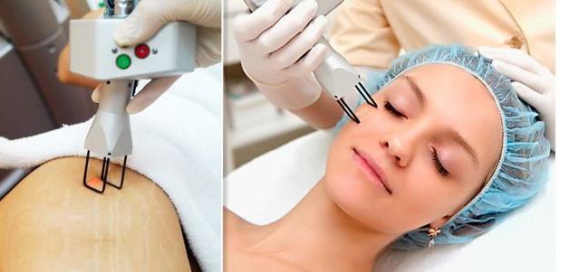 Удаление рубцов лазером на лице. Отзывы, фото до и после, цена