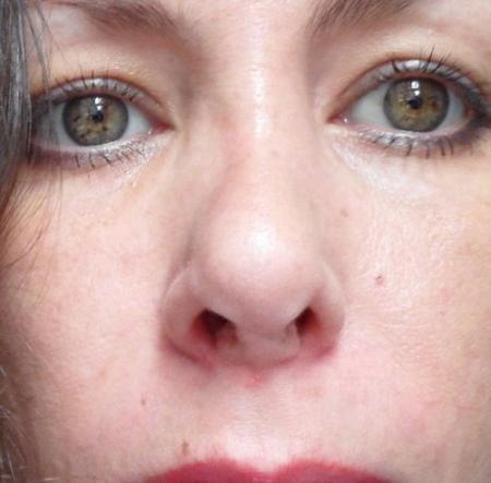 Длинный нос у девушки. Фото до и после ринопластики