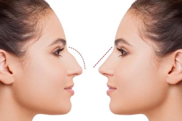 Курносый нос у девушки. Как исправить, фото до и после ринопластики