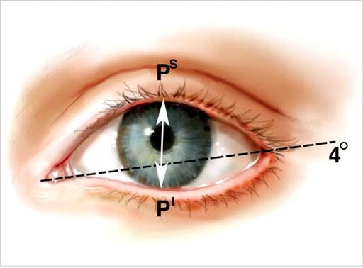 Маленькие глаза у девушек. Как увеличить, цена пластики, операции
