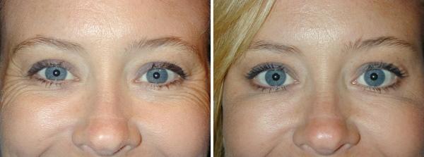 Мезоботокс под глаза. Отзывы, фото до и после