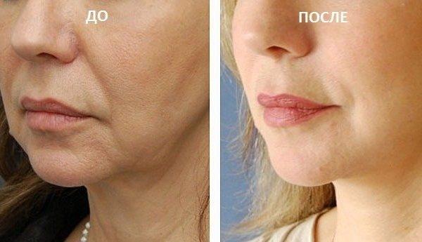 Мононити (мезонити) для подтяжки лица. Отзывы, фото, цена