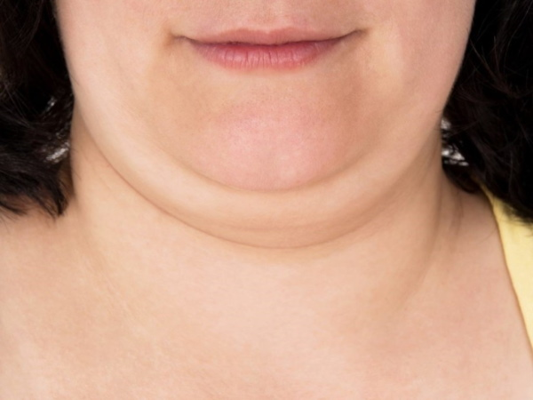 Пластика шеи и подбородка. Фото до и после, отзывы
