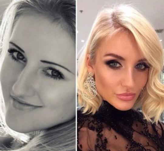 Анна Лапина до и после пластики. Фото