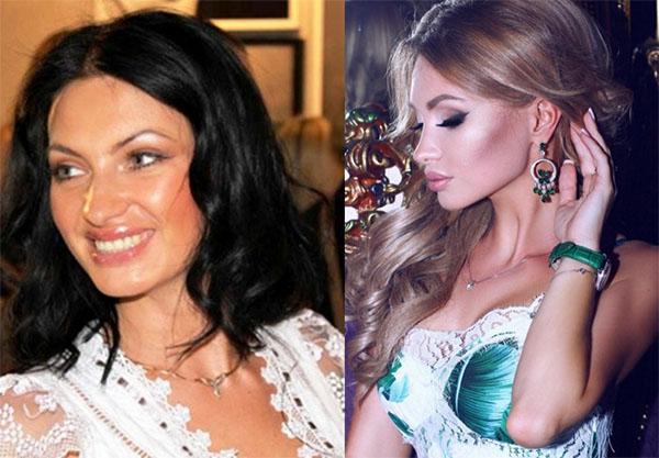 Феофилактова Евгения. Фото до и после пластики