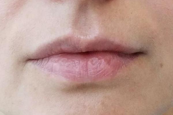 Виды губ у девушек: названия, фото, коррекция