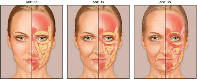 Подтяжка средней зоны лица. Цена, отзывы, фото до и после