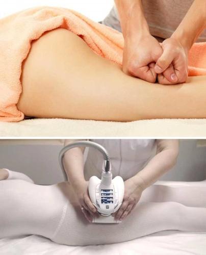 Аппаратный массаж от целлюлита lpg. Отзывы, фото до и после