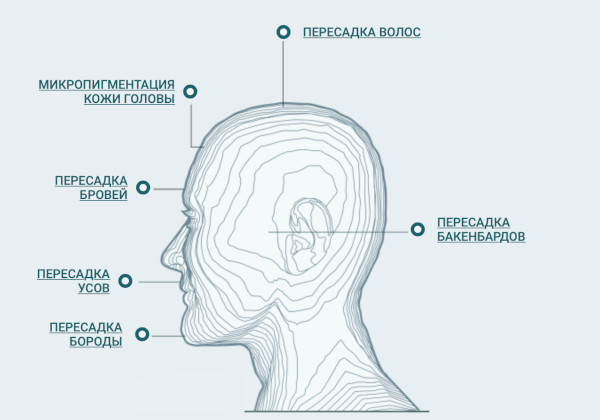 HFE пересадка волос. Фото, как делается операция, цена, отзывы